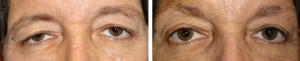 Ptosis-blepharoplasty-external-brow
