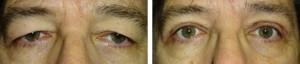 Upper-eyelid-blepharoplasty-2