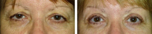 Upper-eyelid-blepharoplasty-with-internal-browpexy