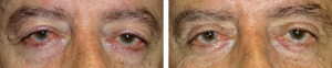 Upper-eyelid-blepharoplasty-internal-browpexy