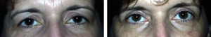 cosmetic-surgery-upper-eyelid