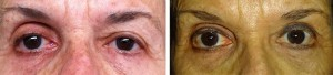 left-upper-lid-blepharoplasty-internal-browpexy