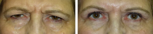 _lower-lid-blepharoplasty-with-internal-browpexy