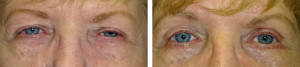 ptosis-repair-upper-lower-blepharoplasty-internal-browpexy