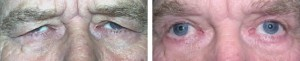 upper-and-lower-lid-blepharoplasty-with-brow-lift