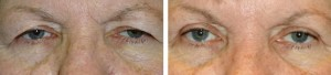 upper-blepharoplasty