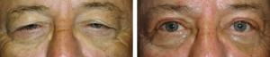 upper-eyelid-blepharoplasty