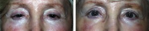 upper-eyelid-lift-ptosis-repair