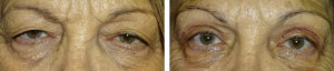 upper-lid-blepharoplasty-and-internal-brow