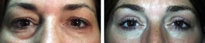 upper-lid-blepharoplasty-and-lower-lid-blepharoplasty