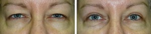 upper-lid-blepharoplasty-internal-bropexy