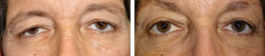 upper-lid-blepharoplasty-internal-brow