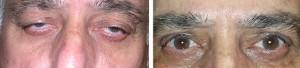 upper-lid-ptosis-blepharoplasty