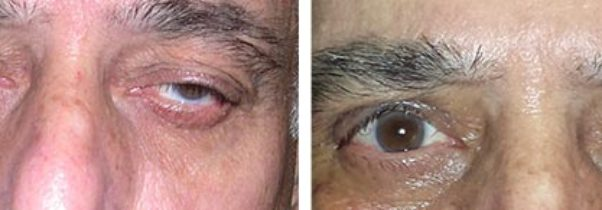 Three Reasons Not to Put Off Treatment for Ptosis