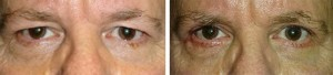 upper-lower-blepharoplasty