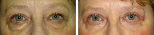 upper-lower-lid-blepharoplasty-xanthalasma-removal