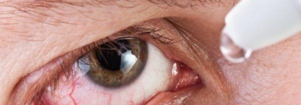 Early Symptoms of Thyroid Eye Disease