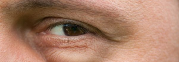 Three Signs of Aging that Can Be Reversed with Blepharoplasty